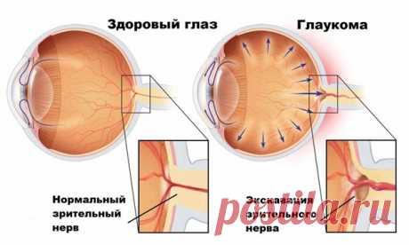 Глаукома – не слышали о ней? Знакомьтесь – серийный тихий убийца зрения