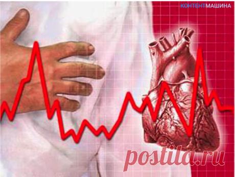 Сердечная аритмия - что это такое и как лечить » Женский Мир