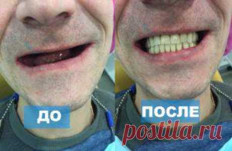 Съемное протезирование зубных имплантов недорого в Химках | MEDIVEL