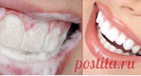 Как избавиться от зубного камня и осветлить пожелтевшую эмаль – Scribo