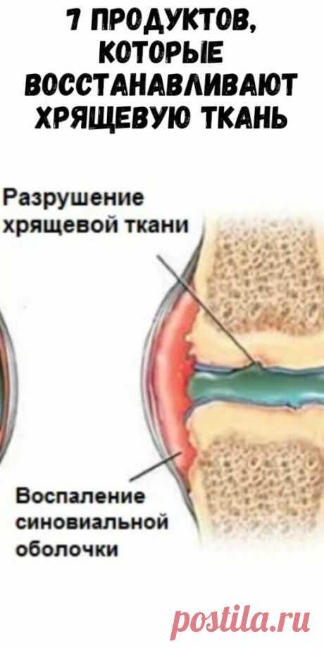 7 продуктов, которые восстанавливают хрящевую ткань - Упражнения и похудение