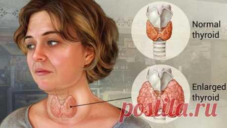 Признаки заболеваний щитовидной железы / Будьте здоровы