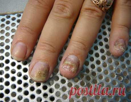 Грибок ногтя на большом пальце ноги: лечение, фото, отзывы  Мази и крема. Таблетки. Народные методы лечения ногтевого грибка на больших пальцах. Лечение грибка с помощью кофе. ... Особенности лечения грибка на большом пальце стопы. Заражение грибком в 90% случаев начинается с большого пальца ноги. Причин здесь несколько. Во-первых, этот палец чаще