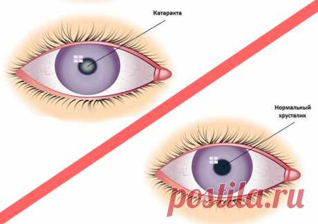 Eliminate a cataract, burning and reddening of eyes and restore sight! The ancient recipe from 2 components!