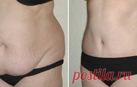 Секреты моего похудения: Как убрать жир на животе за 14 дней — Женские секреты