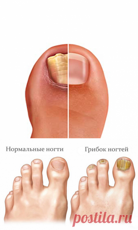 Дешевые средства, которые помогут избавиться от грибка ногтей - MIXTIPS