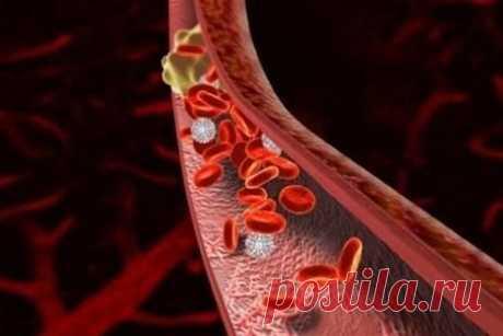Лечение тромбоза сосудов народными средствами