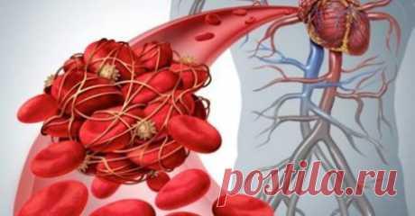 9 безпечних, натуральних розріджувачів крові для зменшення згустків крові (тромбоз) і ризику інсульту
