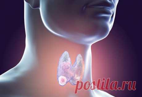 Щитовидная железа: Орган недовольства Женское здоровье