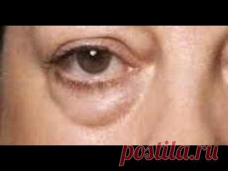 Аптечные средства ОТ МЕШКОВ ПОД ГЛАЗАМИ.