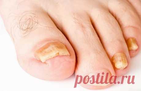Грибок ногтей на ногах: чем лечить в домашних условиях запущенную стадию Лечение грибка в домашних условиях. Методы подходят людям, имеющим повышенную чувствительность на аптечные ... Поможет вылечить грибок ногтей на ногах в домашних условиях. Повязки из аммиака делают в течение 7 дней, после чего делают перерыв. Алгоритм действий