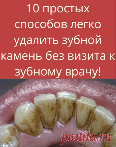 10 easy ways are easy to remove a scale without visit to the dentist!