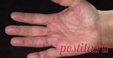 The first symptoms of cancer are shown on hands