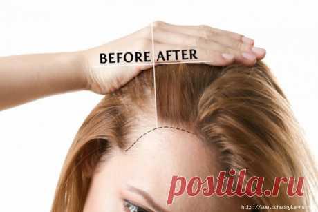 Секретная формула для магической терапии от потери волос!