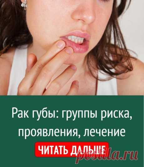 Рак губы: группы риска, проявления, лечение