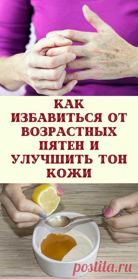 Как избавиться от возрастных пятен и улучшить тон кожи