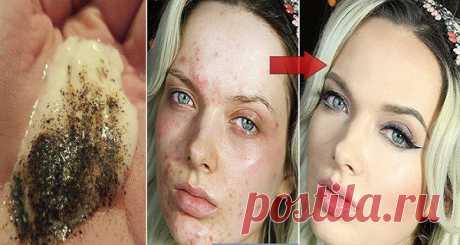 Смешайте эти 2 ингредиента и посмотрите, что произойдет с вашей кожей уже в течение нескольких минут!