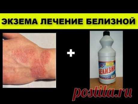 ЭКЗЕМА лечение БЕЛИЗНОЙ - ХЛОРКОЙ (гипохлоритом натрия)