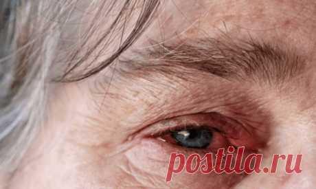 Гранулематоз с полиангиитом: когда стенки сосудов воспалены | ОкейДок | Яндекс Дзен