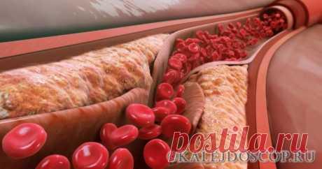 Лучшее лекарство от холестерина и высокого артериального давления! | Калейдоскоп