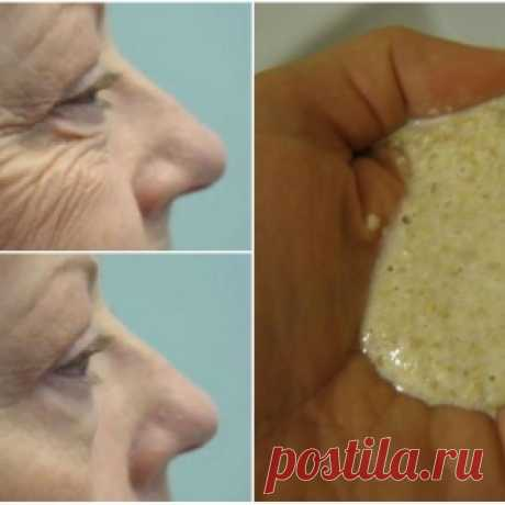 How independently to get rid of nosogubny folds. Ways worth its weight in gold! - Mirtesen