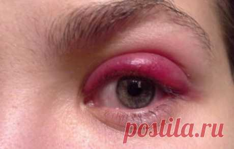 Укусила мошка и опух глаз: что делать и как помочь пострадавшему. Наиболее эффективные методы  устранения неприятных симптомов Укусила мошка и опух глаз: как  лечить, важным является правильная постановка диагноза и выбор самых эффективных методов лечения, в каких случаях обращаться к специалистам  - обязательно