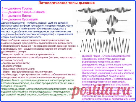 """• Патологические типы дыхания (спирограммы). - Шпаргалки для """"скорой помощи"""""""