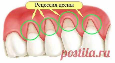 Как устранить оголение шейки зуба и не допустить потерю зубов? Помогут 5 эффективных рецептов! — 🍎 Сад Заготовки