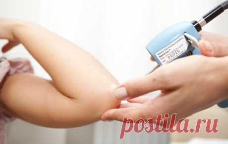 Современные методы лечения псориаза - МирТесен