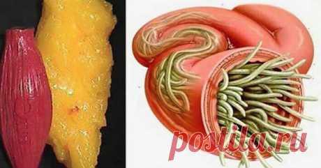 Всего 2 ингредиента - а жира и паразитов, как не бывало! Для того, чтобыустранитьжировые отложения, специалисты предлагают применять принципы правильного питания, так как процесс сжигания жира зависит от многихисточников энергии, таких как углеводы и белки. Пищевые пристрастия часто вызваны стрессом, но […]