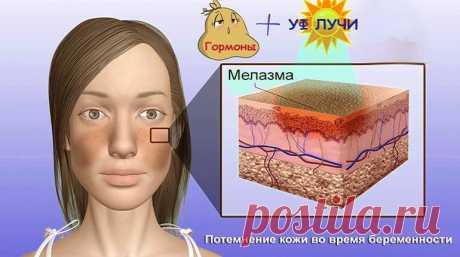 Мелазма: как определить какая форма гиперпигментации у вас? ~ SLOVESA - журнал о развитии
