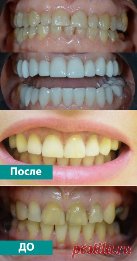 Установка виниров в Николаеве - стоматология МАС