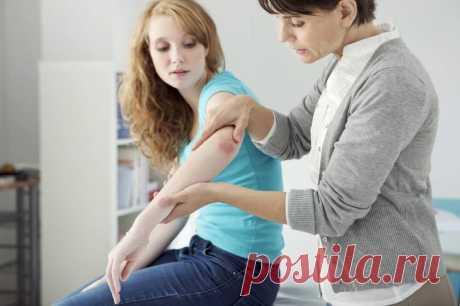 8 советов для больных с псориазом | Здоровье.