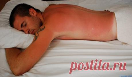 Солнечный ожог: чем мазать в домашних условиях?