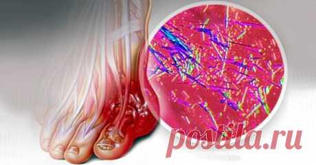 Как вывести из суставов и всего организма мочевую кислоту | На каблуке | Яндекс Дзен