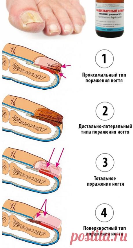 Нашатырный спирт от грибка ногтей на ногах и руках: отзывы, эффективность, популярные рецепты