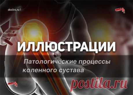 Патологические процессы поражающие коленный сустав: иллюстрации, картинки