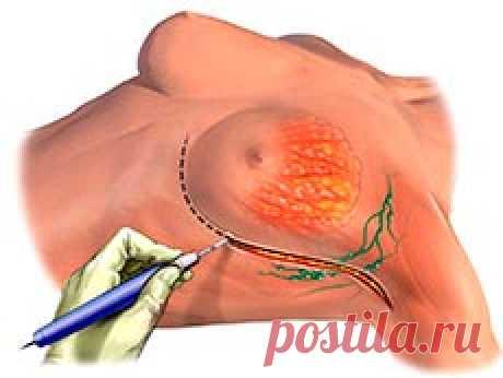 Удаление молочной железы: показания, подготовка, реабилитация