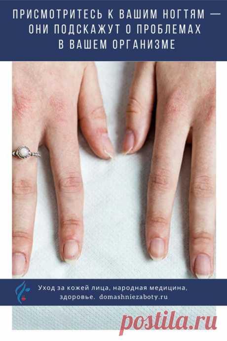 Лунула на мизинце, как правило, должна быть практически незаметна или вовсе отсутствовать. Связана она с работой почек, тонкого кишечника и сердца. Увеличенная лунка может быть причиной повышенного кровяного давления.  Безымянный палец отвечает за работу репродуктивной и лимфатической систем. Плохо заметная лунка может говорить о проблемах с обменом веществ.