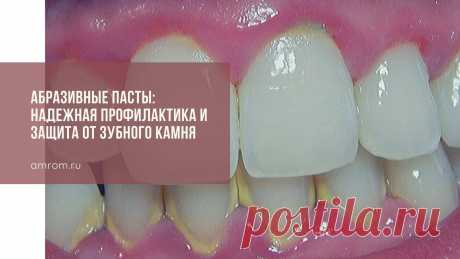 Абразивные пасты: надежная профилактика и защита от зубного камня | Журнал Амром Зубная паста от зубного камня. Согласно данным медицинской статистики, у 8 из 10 пациентов стоматологических кабинетов специалисты диагностируют клинические про