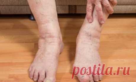 Отек ног у мужчин: причины и лечение