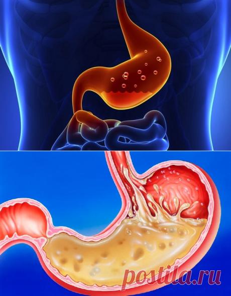 Хронический гастрит: причины, виды и основные методы лечения заболевания