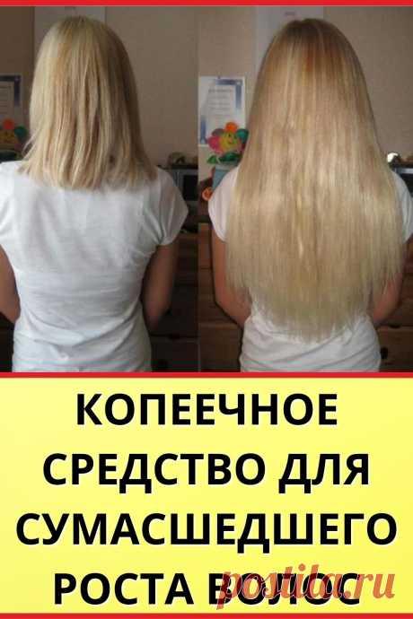 Копеечное средство для сумасшедшего роста волос
