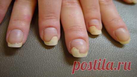 Грибок ногтей на руках серьезное заболевание, которое обладает высоким показателем заразности. Но при верном лечении избавиться от него можно за 1 неделю. Грибок ногтей на руках: фото, симптомы, лечение Изменение цвета ногтевой пластины, её толщины и формы – это самые частые симптомы онихомикоза. Грибок ногтей на руках ...