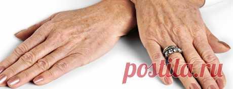 Несколько проверенных способов, помогающих избавиться от пигментации на руках