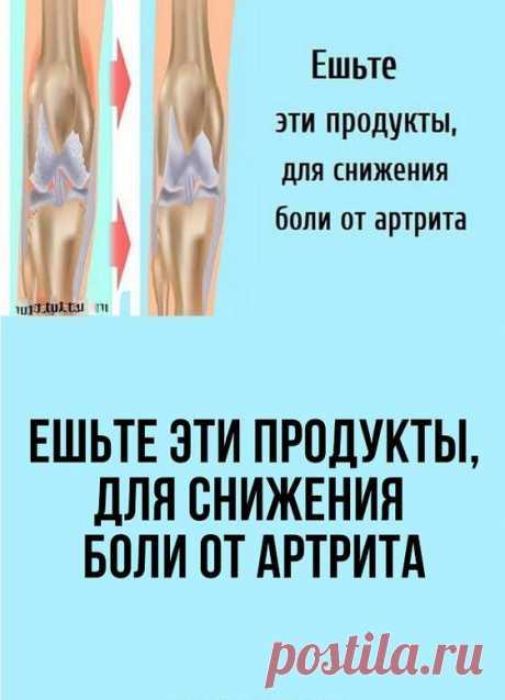 Отек, боль, скованность, уменьшение объема движений в суставах. Все это симптомы слишком распространенного состояния, известного как артрит. Фактически, артрит настолько распространен, что он поражает свыше 54 миллионов взрослых и 300 000 младенцев и детей.
