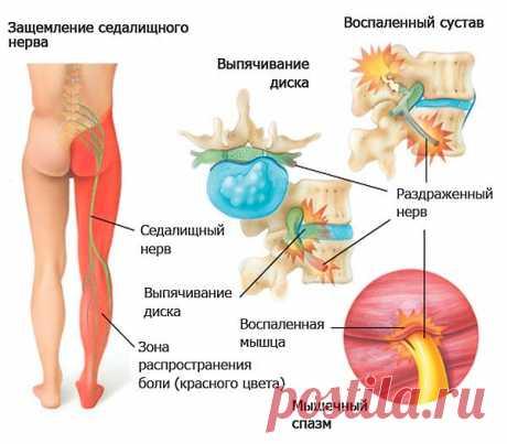 Упражнения при ишиасе седалищного нерва: ЛФК и лечебная гимнастика. Лечение медикаментами ишиаса за 2 дня когда острая боль