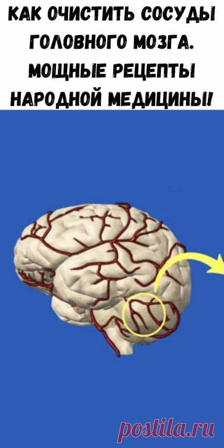 Как очистить сосуды головного мозга. Мощные рецепты народной медицины! - Стильные советы