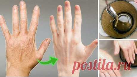 Супер способ сделать руки МОЛОДЫМИ и УХОЖЕННЫМИ за 10 минут ✅100% МГНОВЕННЫЙ ЭФФЕКТ!