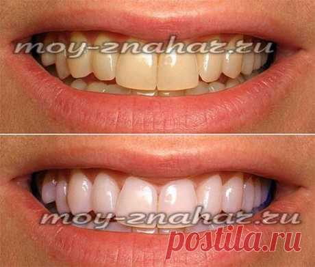 Отбеливание зубов в домашних условиях: самый лучший способ